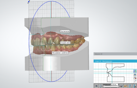 Diagnostic modeles 3D