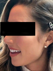 Hair Clip Bride
