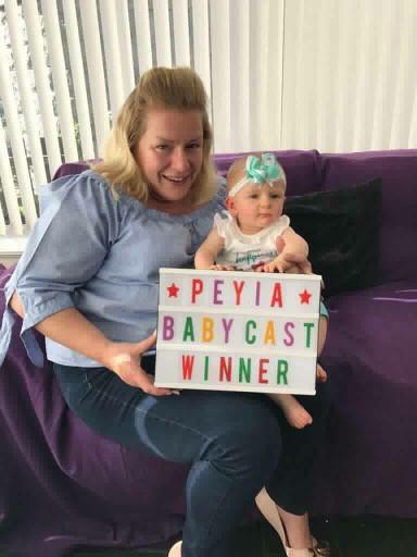Baby cast frame winner