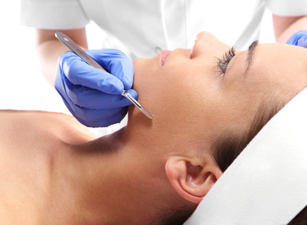Everything You Need to Know About Dermaplaning