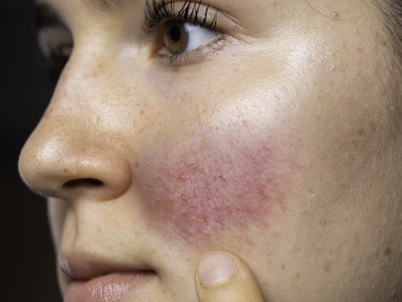 Acne or Rosacea: How to Tell the Difference