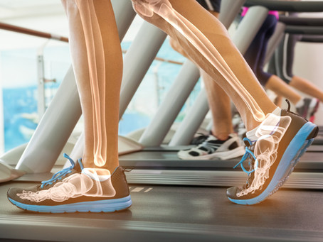 Bone Up on Ways to Keep Bones Healthy With Age