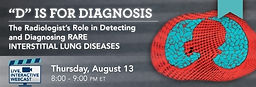 """""""D"""" is for Diagnosis: The Radiologist's Role in Detecting and Diagnosing Rare Interstitial Lung Diseases"""