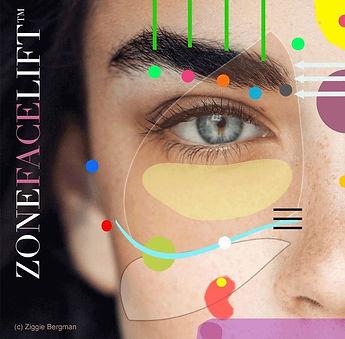 Zone Facelift.jpg