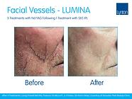 Lumina-B-A-Vascular-Facial-Vessels-Strouden-Park-Beauty-Clinic-After-4-Treatments-3-NdYAG-