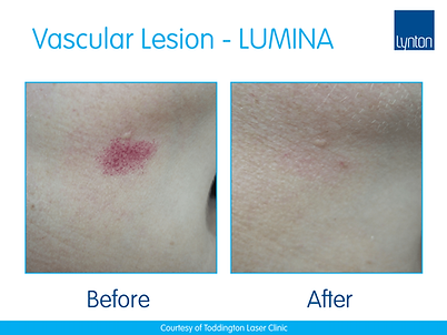 Lumina-B-A-Vascualr-Leisions-at-Toddington-Laser-Clinic.png