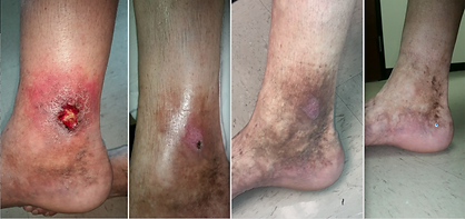 Venous_ulcer_Treated_with_Varithena-chem