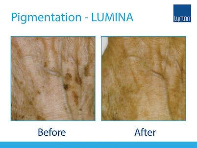 Lumina-BA-Pigmentation-1-.jpg