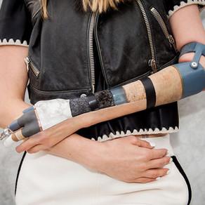 A quoi va ressembler la prothèse du futur ?