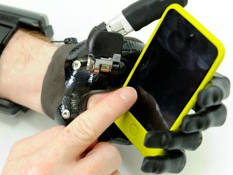 I-DIGIT, la première main myo-électrique pour les amputations partielles de main