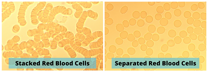 Stacked Red Blood Cells.png