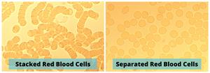 Nimbus Performance cm2 Technology Cell Separation