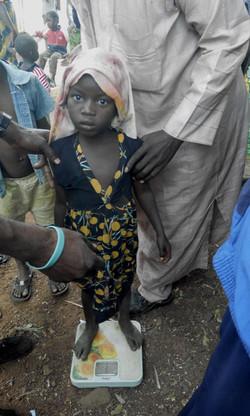 Malnutritioned Child