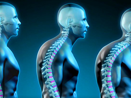 Your posture affects your self esteem