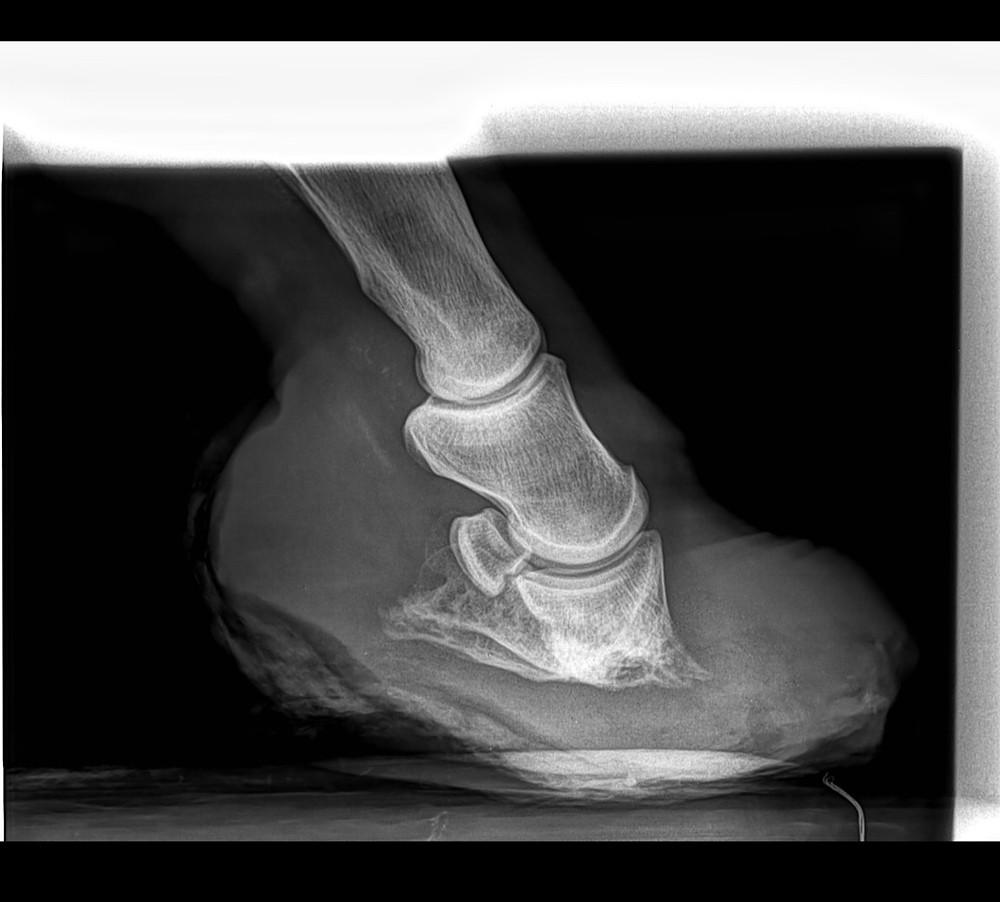 Laminitis, bone loss, Laminitic flare up, Laminae separation, Subacute laminitis, Chronic laminitis, Digital pulse,founder in horses, the horse hub