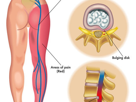 What is Sciatica and what can you do to treat it?