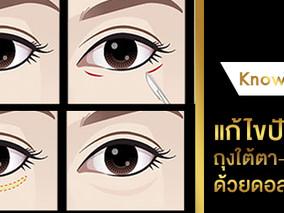 ทำความรู้จักกับศัลยกรรมแก้ไขปัญหาถุงใต้ตา ร่องตาลึก ทำดอลลี่อายตาหวานฉ่ำ
