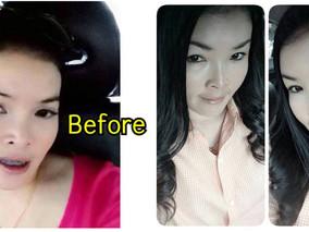ผิวย้อนวัย หน้าได้รูป ด้วยเทคนิคใหม่ใช้ Microfat ไขมันตัวเอง ร่วมกับ Botox!!