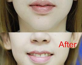 ศัลยกรรมริมฝีปากต้องสวยเป็นกระจับ  V PLAST เน้นสวยแบบปลอดภัย ไม่บางจนเกินไป