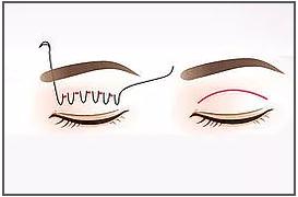 ทำศัลยกรรมตาสองชั้น 3 แบบ กับ Vplast Clinic มีแบบไหนบ้าง ?