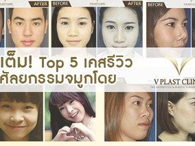 จัดเต็ม! TOP: 5 เคส ศัลยกรรมจมูกกับ Vplast Clinic ที่เราภูมิใจนำเสนอ