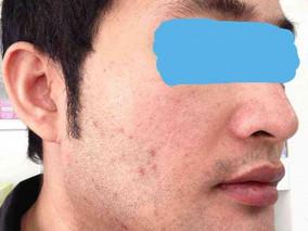 ปรับหน้าเรียวด้วย Botox VPLAST พร้อมเทคนิคฉีดกระชับรูขุมขน ผิวเด้งใส