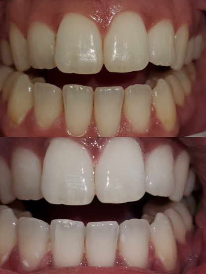 Before and After Advanced Clinical Formula