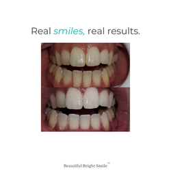 Real smiles, real results.