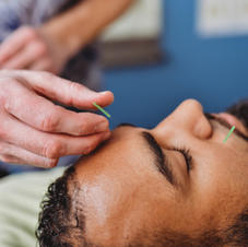 Acupuncture - Private Room Treatments