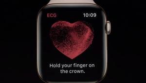 ECG-Apple-Watch-Elettrocardiogramma