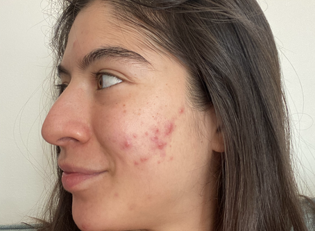 Why is your acne not going away? ~ All about hormonal acne (adult acne) #acnejourney