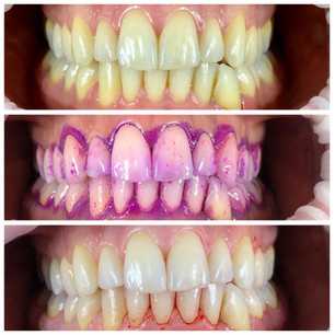 Teeth clean before and after