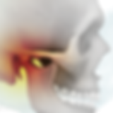 inflamed-Temporomandibular-Joint-TMJ_edi