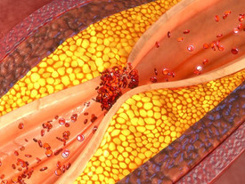 Why fat cells cause metabolic morbidity