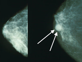 Significant increase in weight gain after breast cancer diagnosis