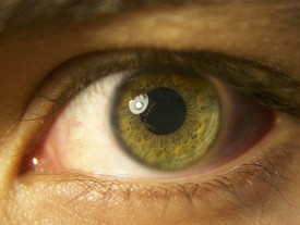 Bariatric surgery proven to reduce risk of cataracts