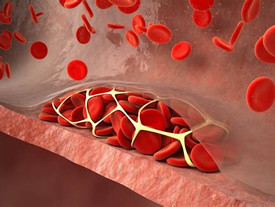 Higher thrombus risk in men who had obesity in adolescence
