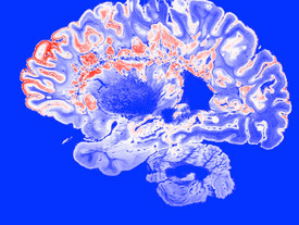 Bariatric surgery alters brain's response to hunger, appetite and food intake