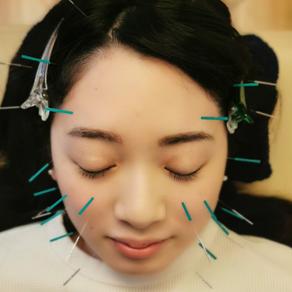 美容鍼が気になる方へ、お勧めする3つの理由