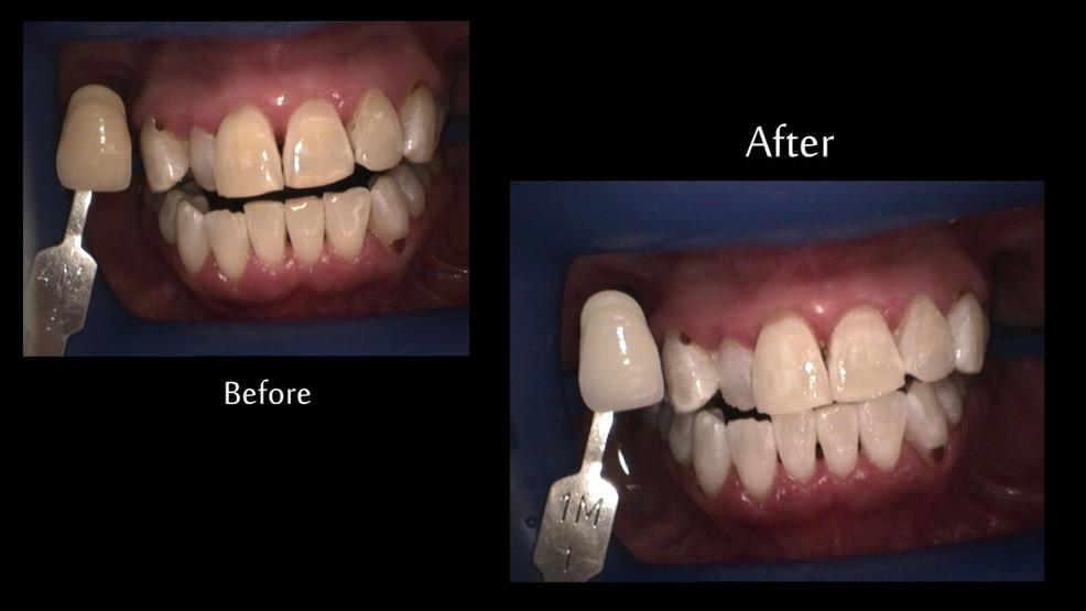 Kempsey Dentist, Taree Dentist