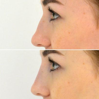 fillers näsa näskorrigering före och efter