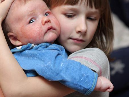 Skin allergies in children