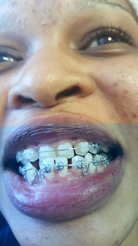 Braces Orthosontist