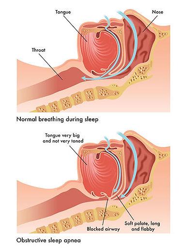 sleep apnea chart