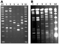 PCR-Test.jpg