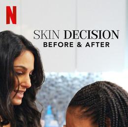 Skin Decision