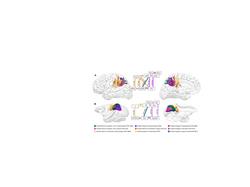 Parietal pathways