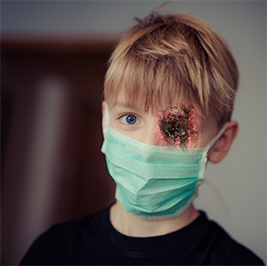 Kid with mask bleeding eye