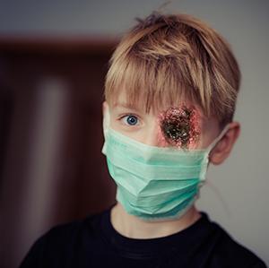 Kid with mask bleeding eye