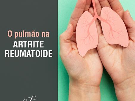 O pulmão na Artrite Reumatoide